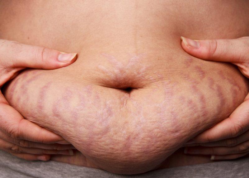 Strama upp magen efter graviditeten
